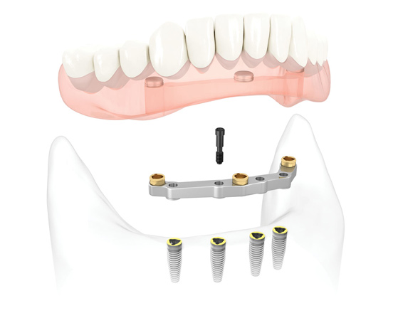 Removable-full-denture